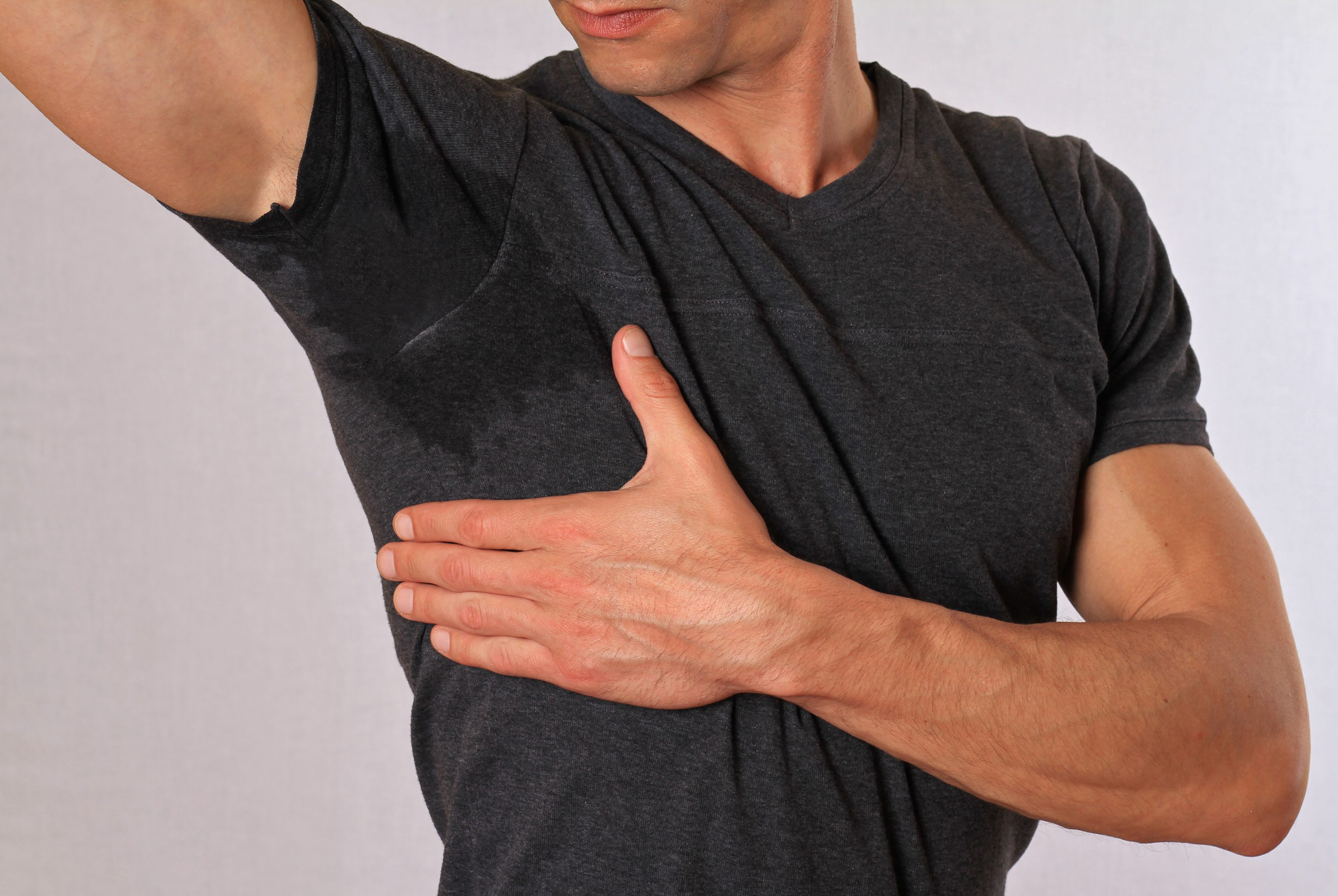 Hyperhidrosis (Excessive Sweating)