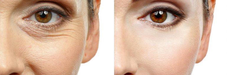 Considering an Anti-Aging/Facial Rejuvenation Procedure?